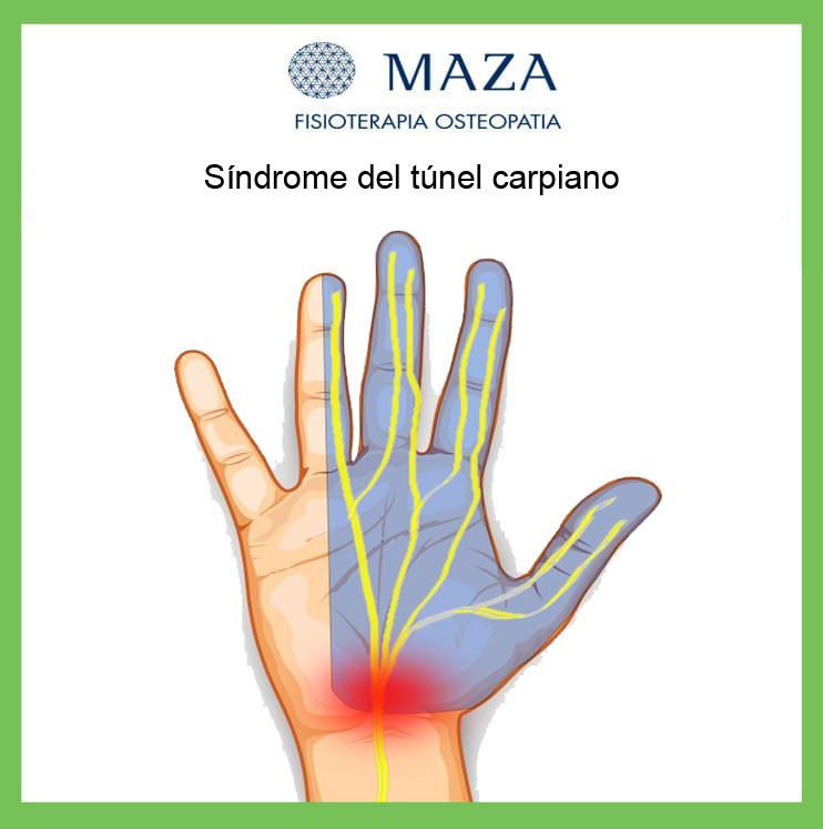 sindrome-tunel-carpiano-maza.jpg
